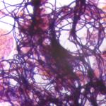 Bactéries filamenteuses